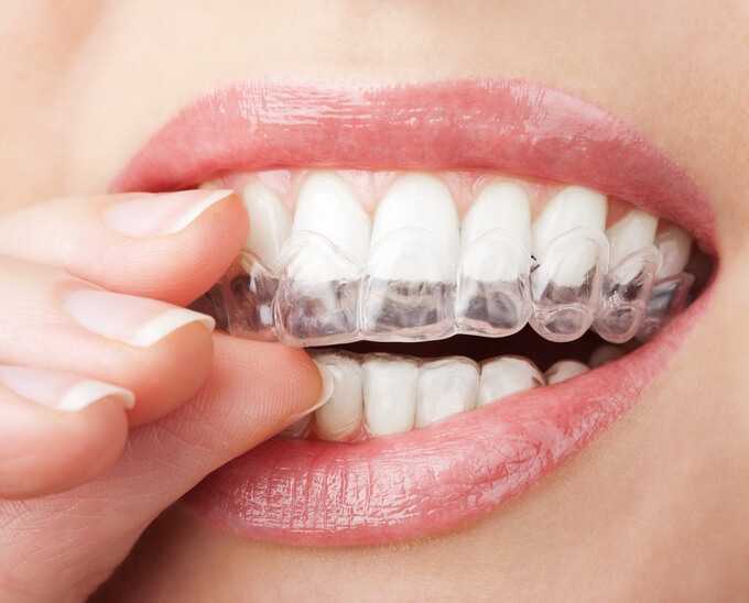 Zgrzytanie zębami – bruksizm